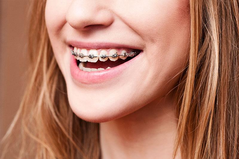 Orthodontics - Juan Carlos Baltazar Angel, DDS, Zona Centro, Tijuana Dentist