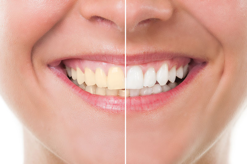 Teeth Whitening - Juan Carlos Baltazar Angel, DDS, Zona Centro, Tijuana Dentist
